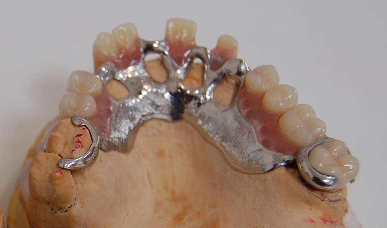 Proteza szkieletowa górna.